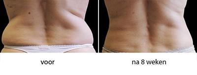 voor en na 8 weken resultaten