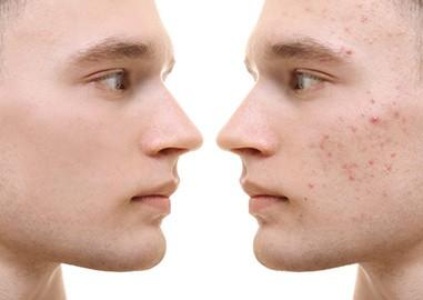 wat te doen bij acne